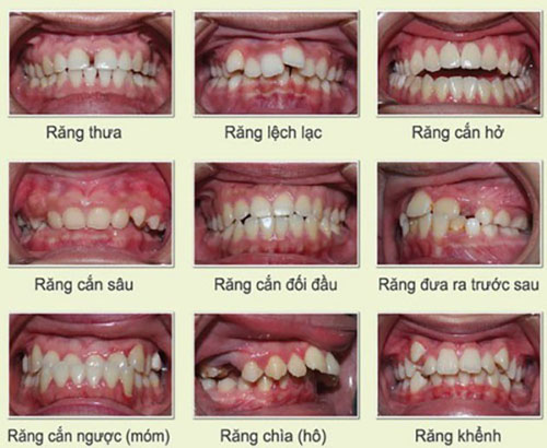 Các dạng răng mọc lệch phổ biến