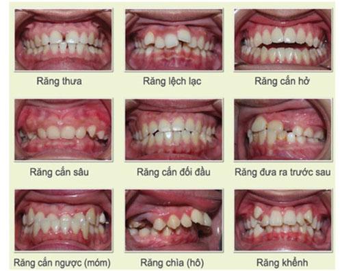Các dạng răng mọc lệch