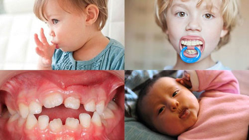 Các thói quen xấu lúc nhỏ là nguyên nhân khiến răng mọc lệch lạc