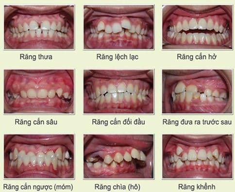 Các trường hợp nên niềng răng