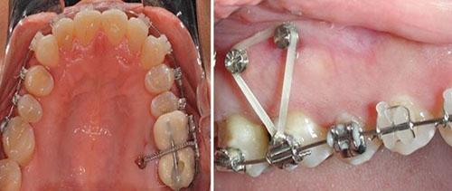 Cắm vít niềng răng chỉ mất khoảng 10 – 15 phút/vít là hoàn thành