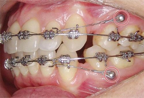 Cắm vít tạo điểm neo cố định giúp các răng dịch chuyển thuận lợi
