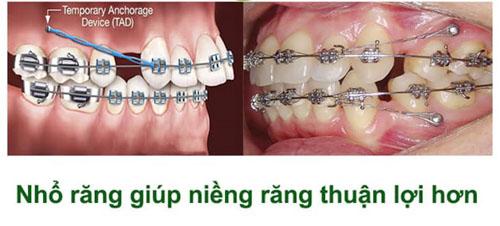 Chỉ định nhổ răng cũng tùy vào từng trường hợp