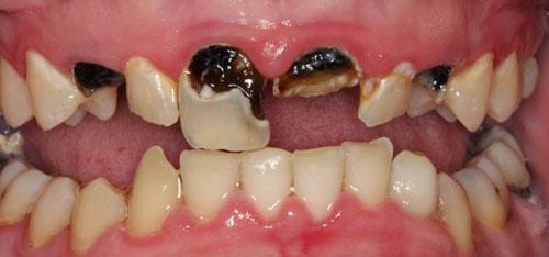 Chỉ nhổ răng khi có bệnh lý nặng, không thể điều trị bảo tồn được