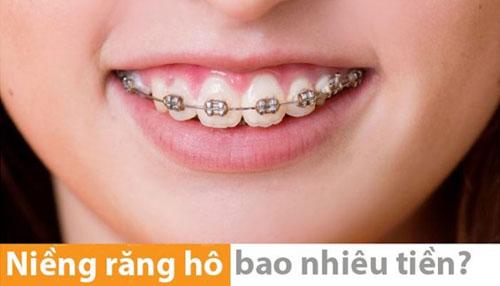 Chi phí niềng răng hô là bao nhiêu?