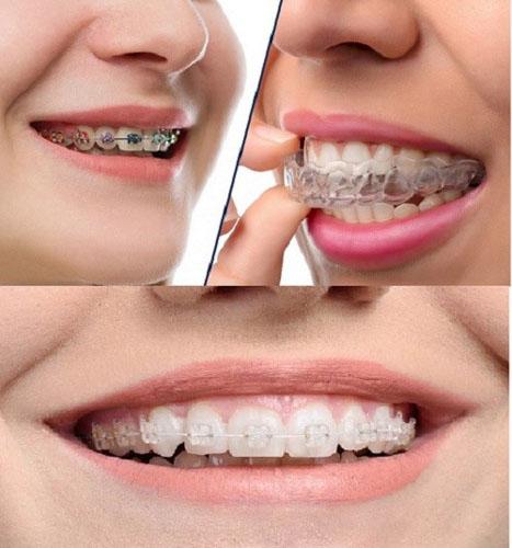 Chi phí niềng răng hô phụ thuộc vào phương pháp được lựa chọn
