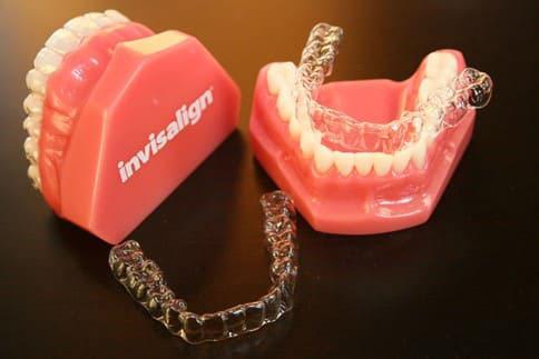 Chi phí niềng răng Invisalign thường đắt hơn các phương pháp khác