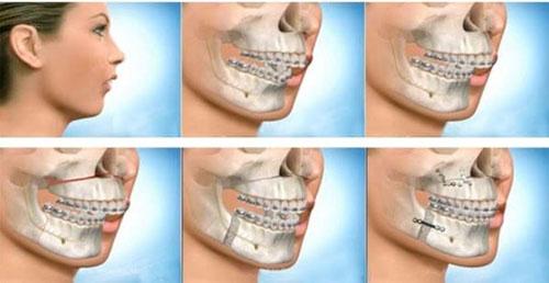 Chỉnh răng hô hàm trên bằng phương pháp nào hiệu quả?