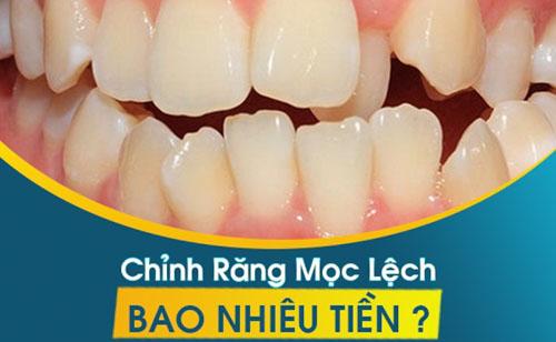 Chỉnh răng mọc lệch bao nhiêu tiền?