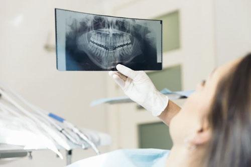 Chụp x-quang răng là một bước rất quan trọng