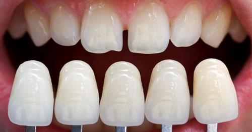 Có thể khắc phục răng thưa nhẹ bằng mặt dán sứ