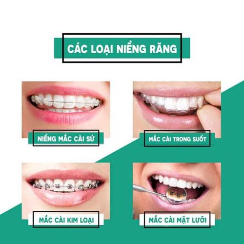 Đa dạng các phương pháp niềng răng