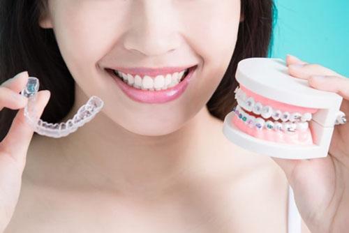 Đa dạng phương pháp niềng răng phù hợp với nhu cầu thẩm mỹ của bệnh nhân