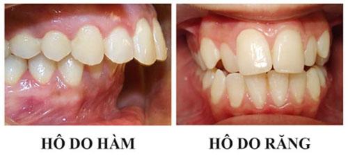 Đặc điểm nhận dạng các loại răng hô