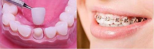 Để biết nên niềng răng hay bọc răng sứ cần phải thăm khám cụ thể