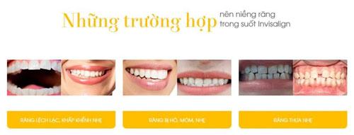 Đối tượng phù hợp niềng răng Invisalign