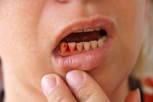 Dụng cụ niềng răng tại nhà gây nhiều nguy hại cho răng miệng