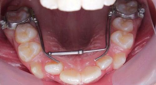 Dụng cụ nong hàm