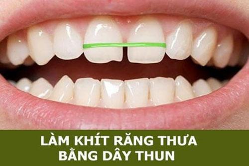 Dùng dây thun để làm khít răng thưa