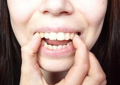 Dùng tay đẩy răng