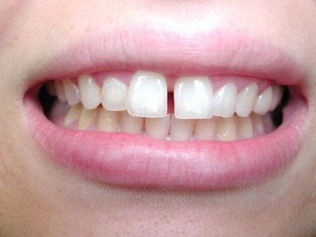 Hình ảnh răng cửa thưa