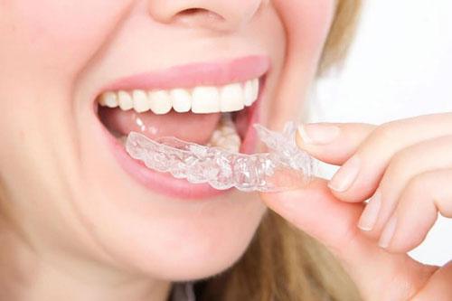Khay niềng dễ dàng tháo lắp để ăn uống, vệ sinh răng miệng