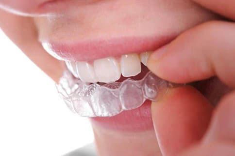 Khay niềng dễ dàng tháo lắp khi vệ sinh răng miệng, ăn uống