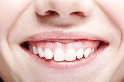 Khi bị cười hở lợi cần phải cắm vít khi niềng răng