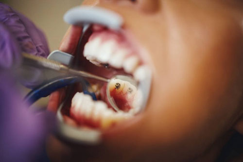 Kỹ thuật niềng răng mặt trong khá phức tạp