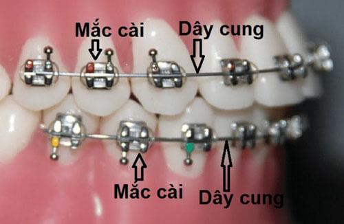 Mắc cài và dây cung trong chỉnh nha niềng răng