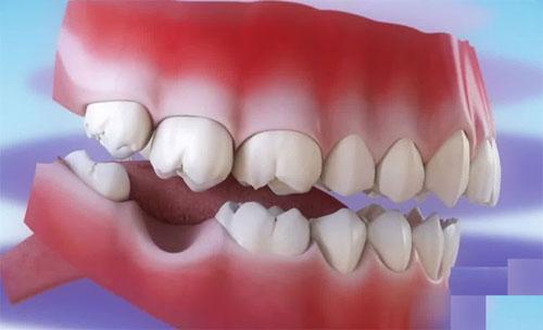 Mất răng số 6 cần phải cấy vít để tạo điểm cố định
