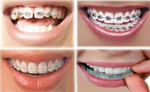 Mỗi phương pháp niềng răng sẽ có mức giá khác nhau