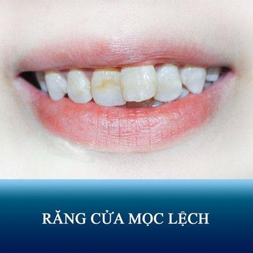 Nguyên nhân răng cửa mọc lệch và cách khắc phục hiệu quả