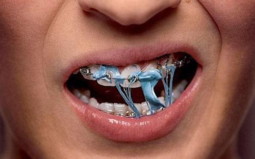 Nhai kẹo cao su rất dễ bám dính vào mắc cài