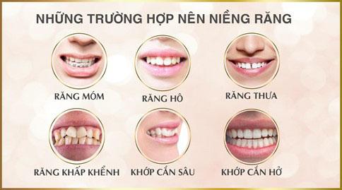 Những trường hợp nên niềng răng thẩm mỹ