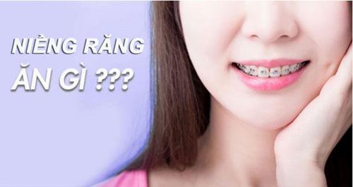 Niềng răng ăn gì?