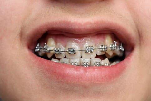 Niềng răng bằng mắc cài kim lại giúp rút ngắn tối đa thời gian điều trị