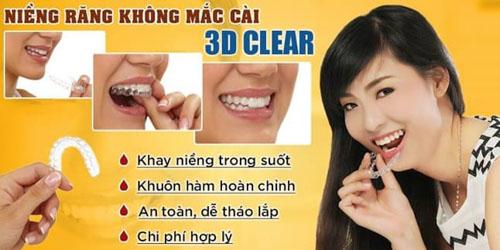 Niềng răng bằng nhựa 3D Clear