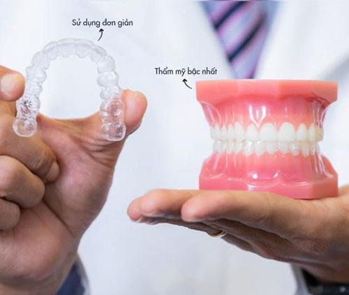 Niềng răng bằng nhựa là kỹ thuật chỉnh nha tiên tiến nhất hiện nay