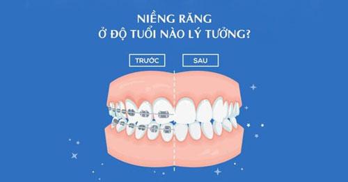 Niềng răng bao nhiêu tuổi là phù hợp?
