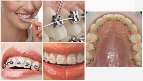 Niềng răng chỉnh nha giúp đem lại hàm răng đều đẹp, chuẩn khớp cắn