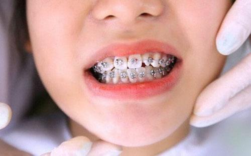 Niềng răng chỉnh nha khắc phục triệt để tình trạng răng cửa mọc lệch