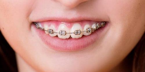 Niềng răng chỉnh nha trong trường hợp hô do răng