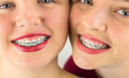 Niềng răng chữa cười hợ lợi có hiệu quả không tùy vào từng trường hợp