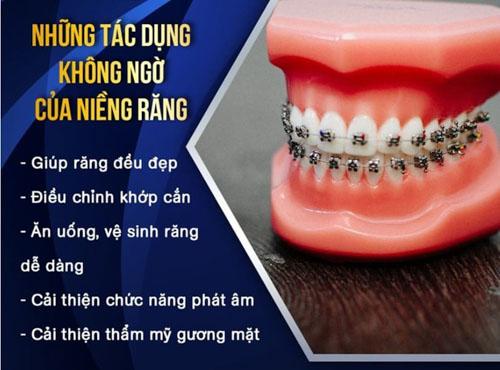 Niềng răng đem lại nhiều lợi ích đáng kể