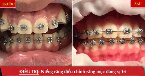 Niềng răng giúp điều chỉnh các răng mọc về đùng vị trí