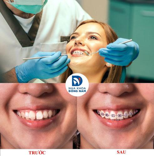 Niềng răng hiệu quả tại Nha Khoa Đông Nam