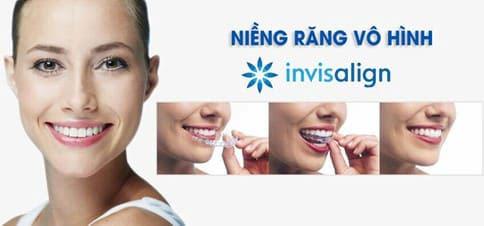 Niềng răng Invisalign là phương pháp chỉnh nha tiên tiến nhất hiện nay