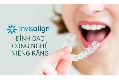 Niềng răng Invisalign và những điều cần biết