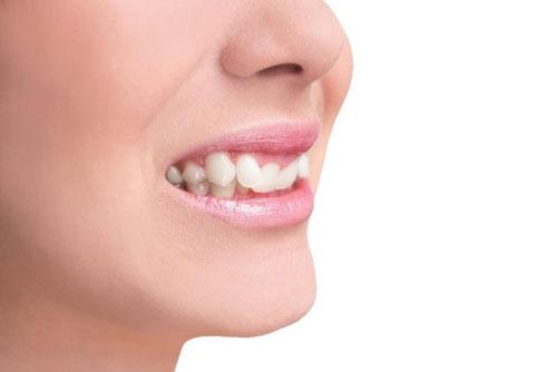 Niềng răng khểnh hết bao nhiêu tiền và mất bao lâu?